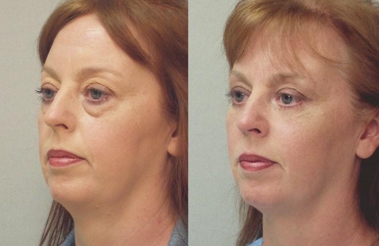 Лазерная блефаропластика: фото до и после
