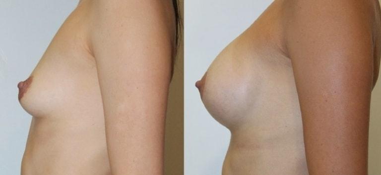 До и после установки грудных имплантов