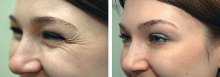 Фото до и после Ботокса вокруг глаз