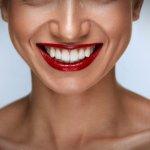 Шикарная улыбка