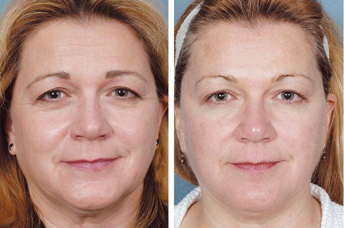 До и после пласзмолифтинга лица
