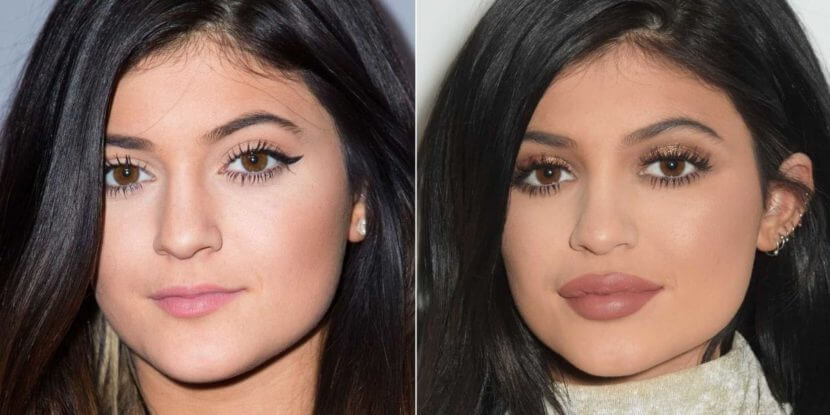 До и после увеличения губ гиалуроном