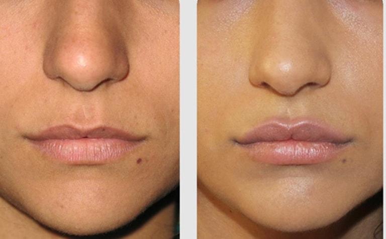 Фото до и после липофилинга губ