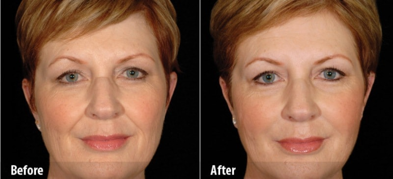 фото до и после биоревитализации