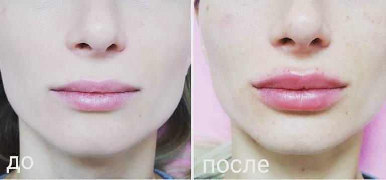 Увеличение губ до и после