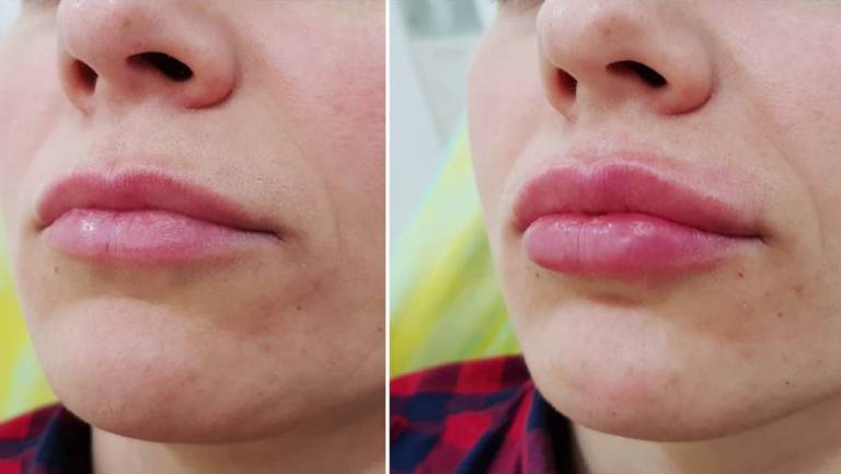 до и после увеличения губ