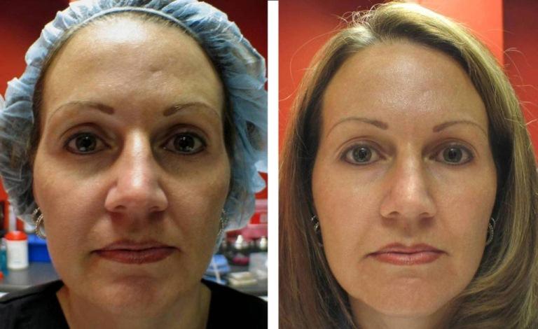 Мезотерапия: отзыв с фото до и после