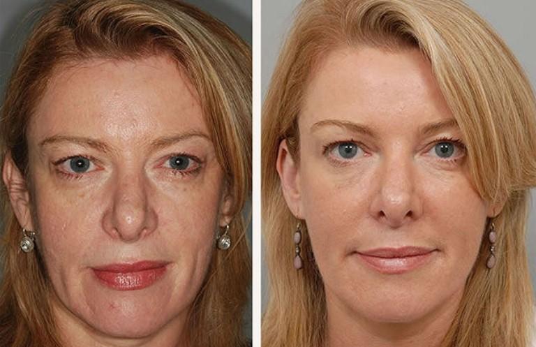 термолифтинг лица до и после