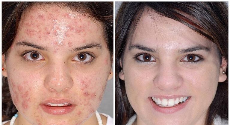 Кислотный пилинг для лица до и после