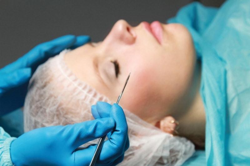 Хирургический лифтинг лица