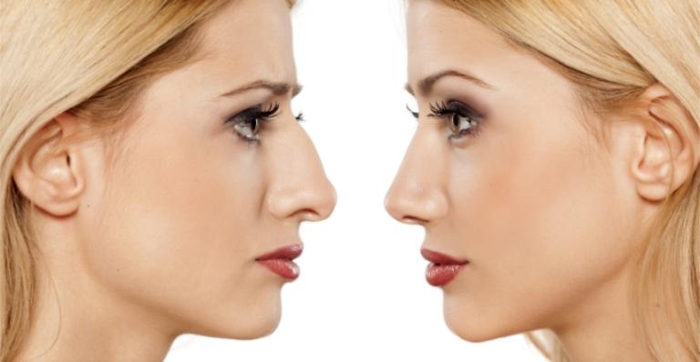 Ринопластика до и после