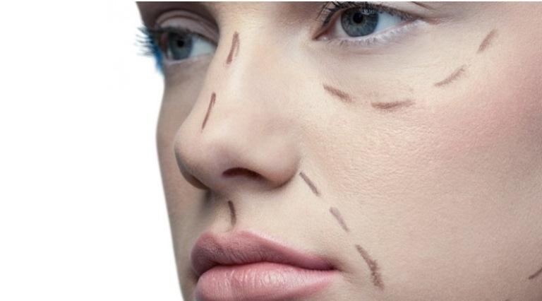 Линии на лице перед пластикой