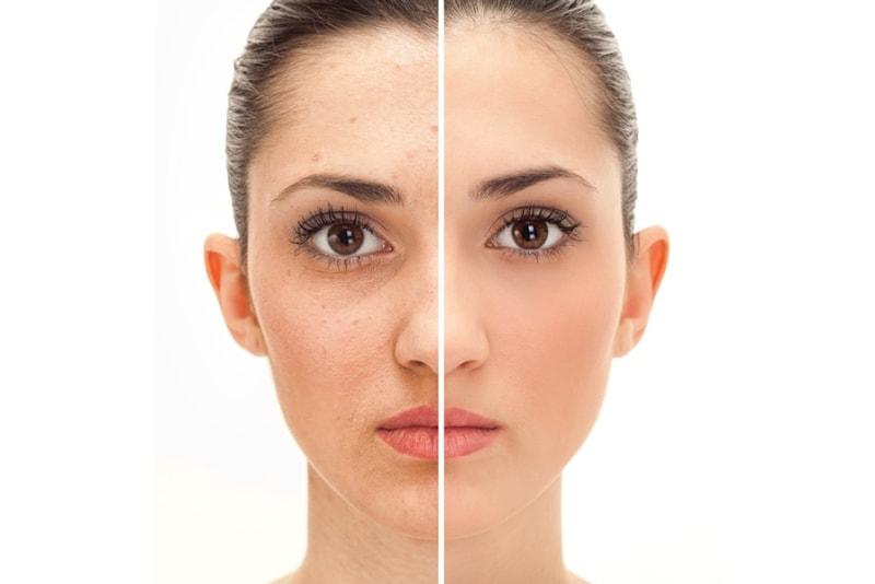 фотоомоложение пигментация фото до и после