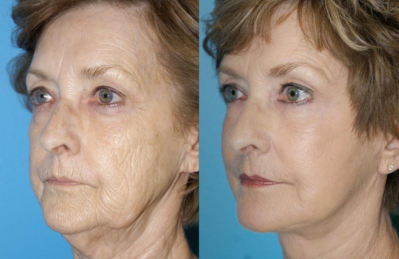 Пластика лица до и после