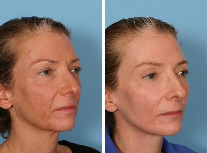 лицо до и после фракселя