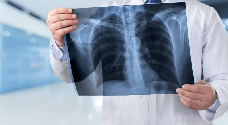 Рентген в руках доктора