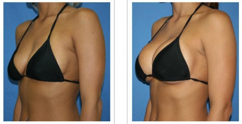 Ментор импланты до и после