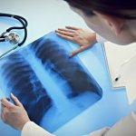 Доктор и рентген