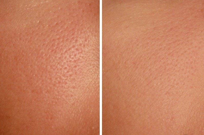 Расширенные поры на лице до и после