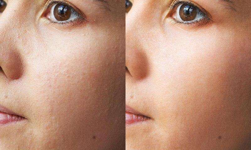 Чистка ультразвуком лица до и после