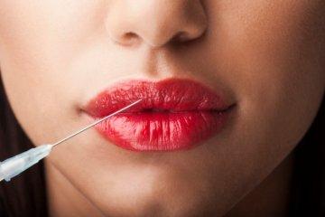 укол возле губ