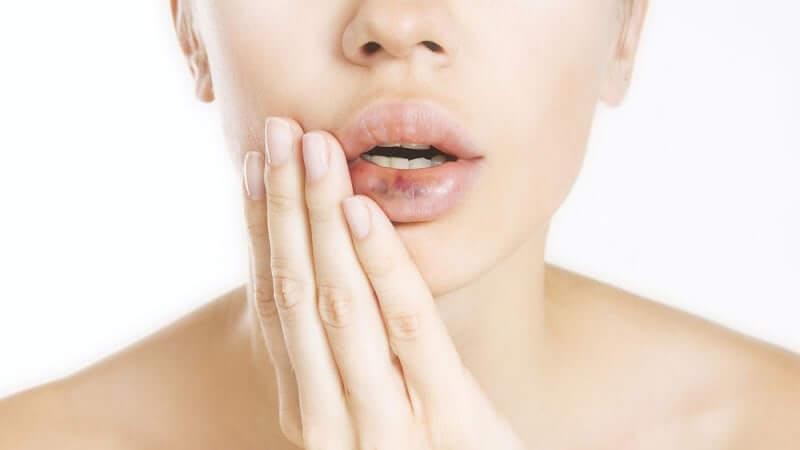 последствия увеличения губ