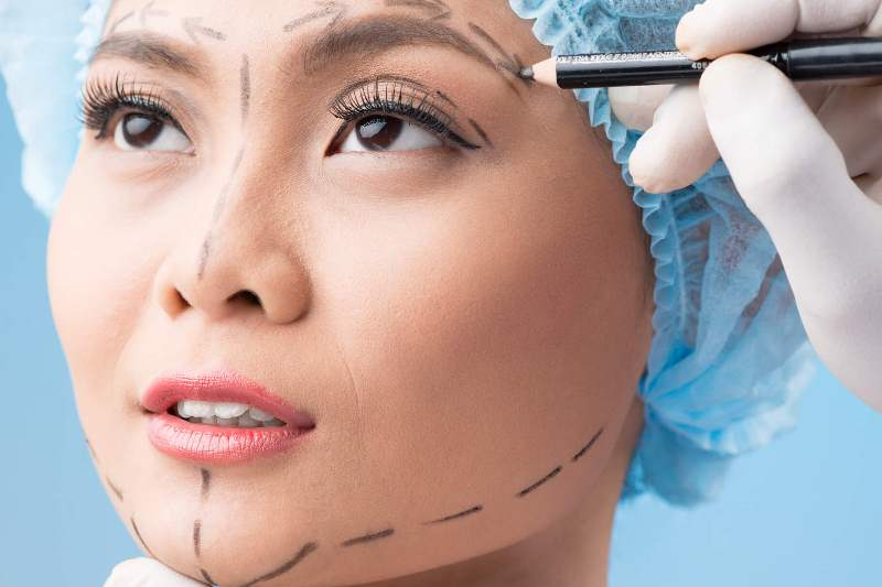 разметка на лице перед операцией