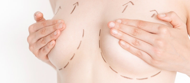 Подтяжка грудных желез без имплантов
