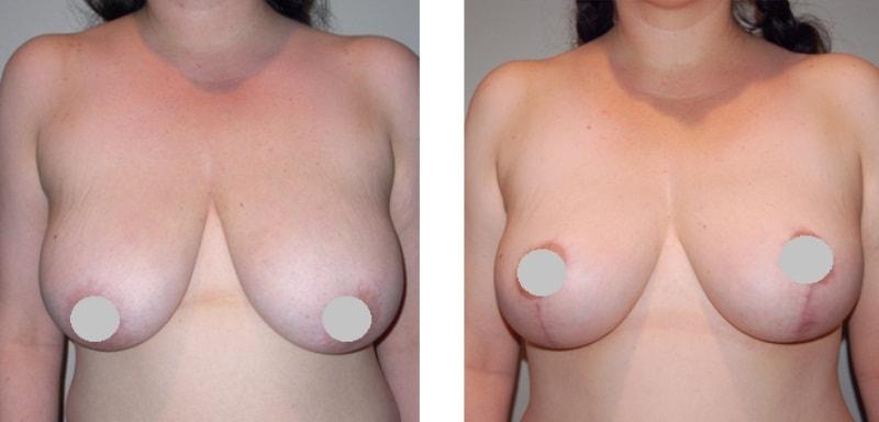 Подтяжка грудных желез без имплантов до и после