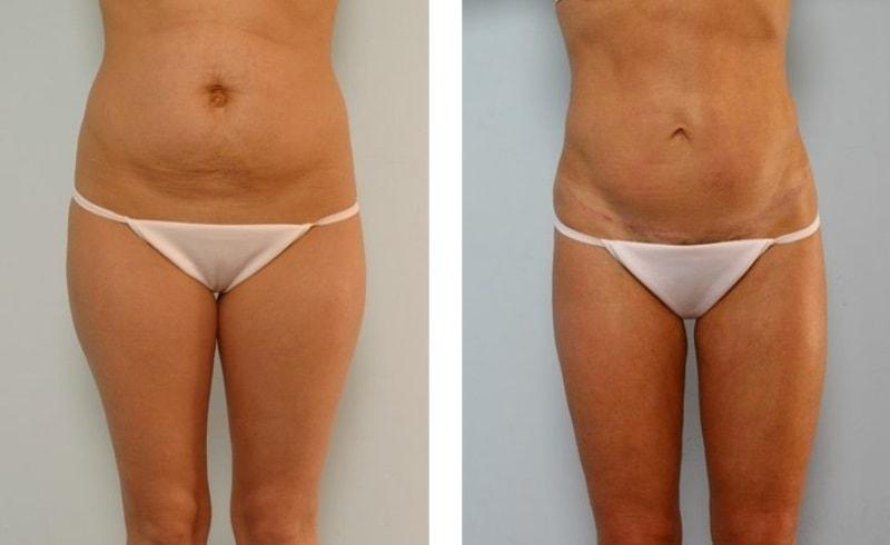 абдоминопластика живота фото до и после