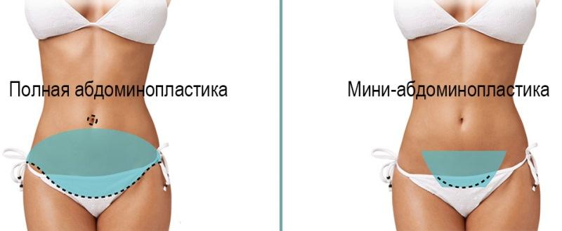 Два вида абдоминопластики