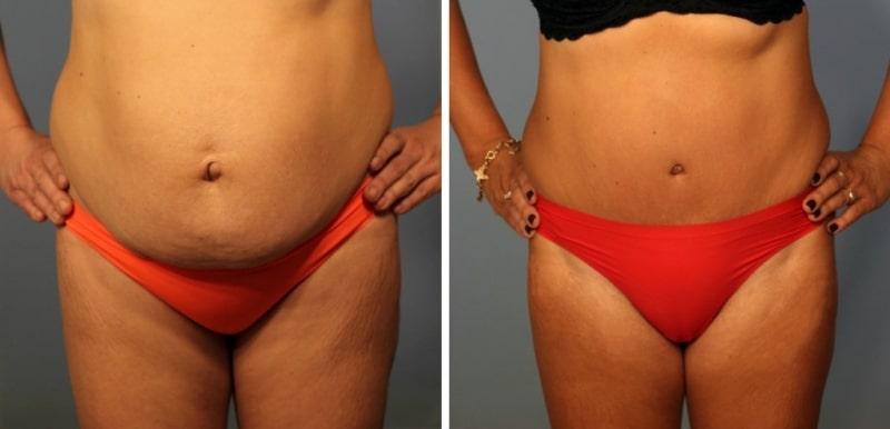 фото до и после абдоминопластики живота у женщины