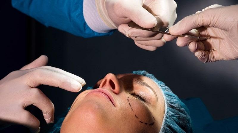Хирургическая подтяжка щек