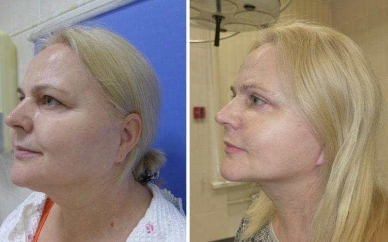 отзыв о смас лифтинге с фото до и после