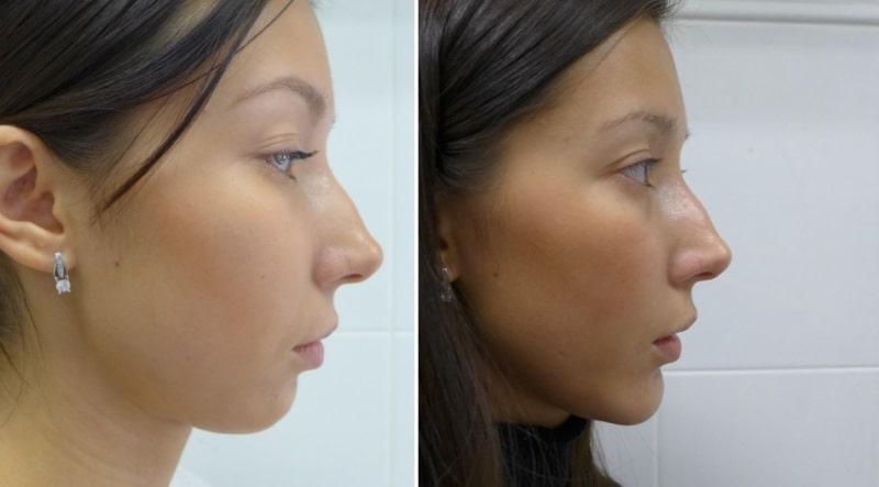 Девушка до и после ментопластики от Михайлова