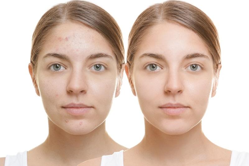 фото до и после лечения комедонов