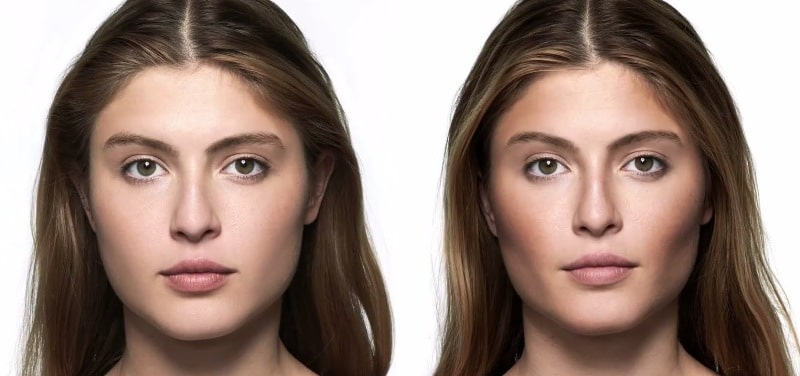 Фото до и после коррекции скул Ювидерм-4