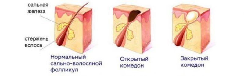 схема видов комедонов на лице