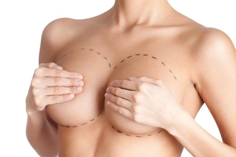 Разметка на груди