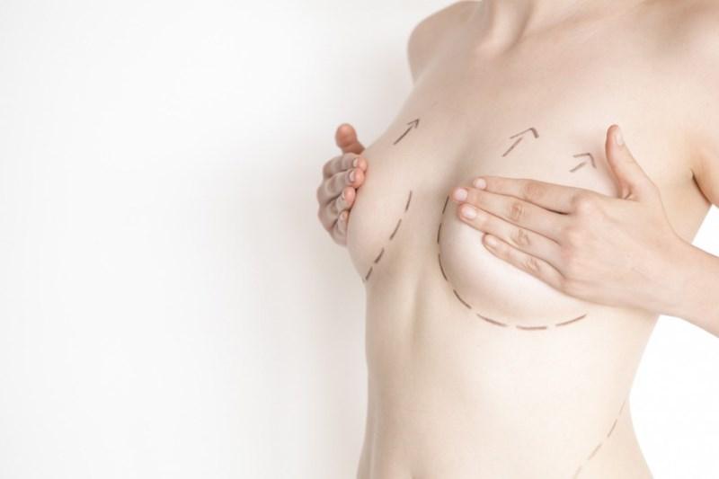 Подготовка к пластике груди