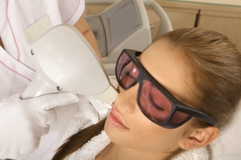 Проводится лазерная эпиляция на лице