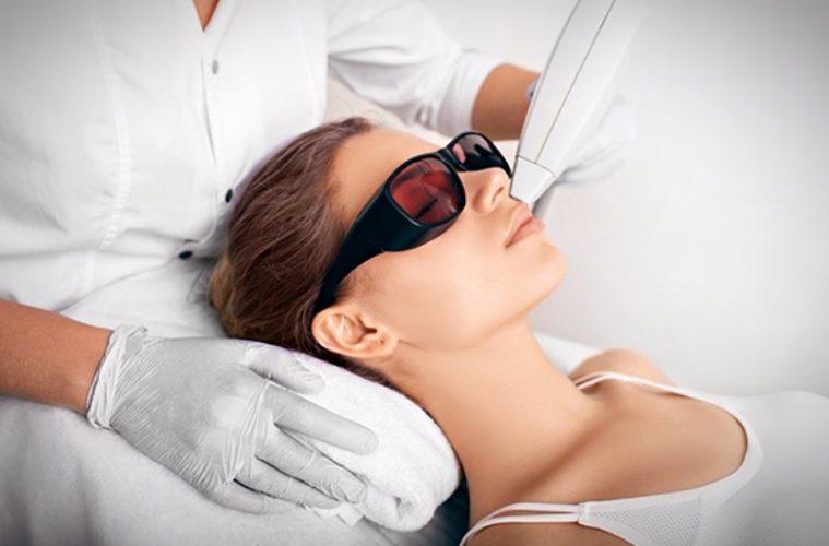 лазерная эпиляция женских усиков