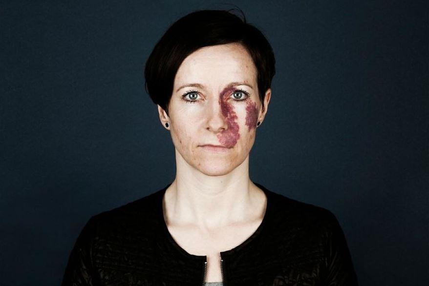 Родимое пятно на лице у женщины