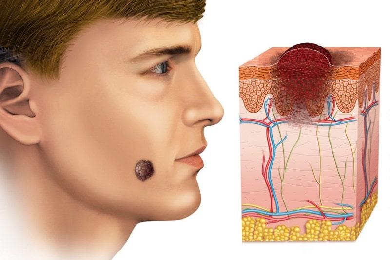 Базалиома кожи лица и ее схема