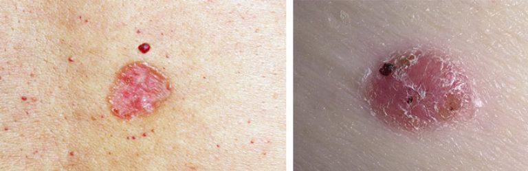 Базалиома кожи лица на фото