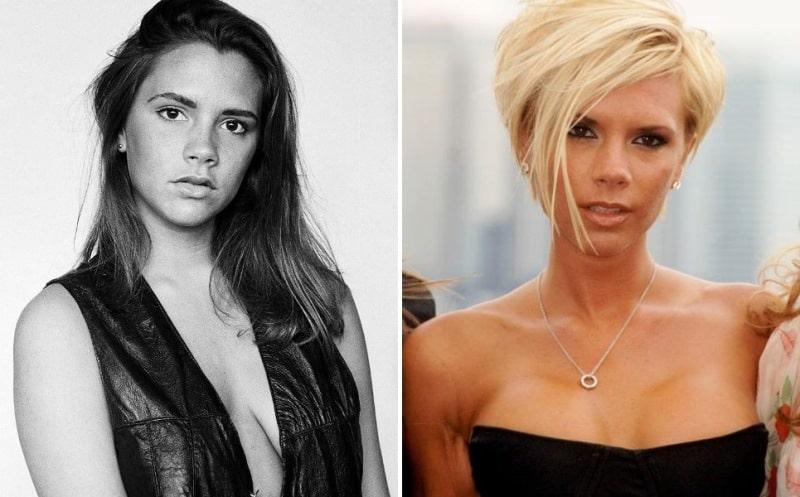 Виктория Бекхем до и после пластики