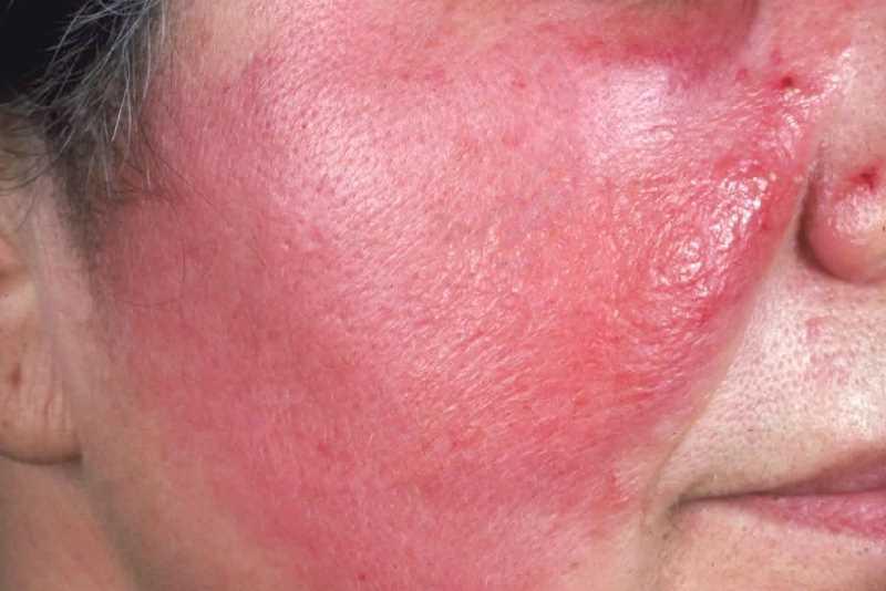 Рожистое воспаление лица на фото