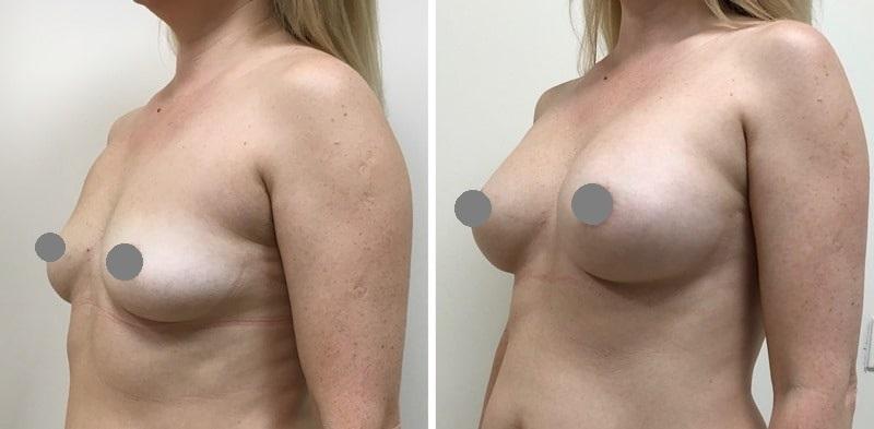 пластика груди: до и после