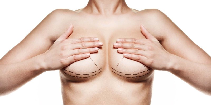 Подготовка к установке грудных имплантов
