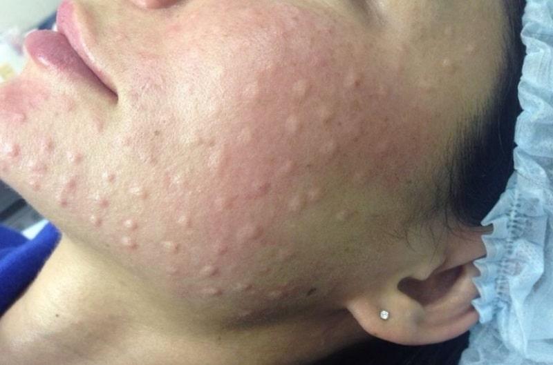 Папулы после биоревитализации на лице